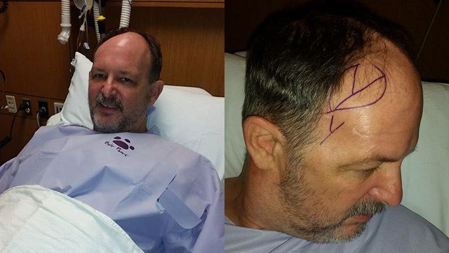 Deputy Dempsey before he went into surgery on Wednesday. (Source: Amy Dempsey)