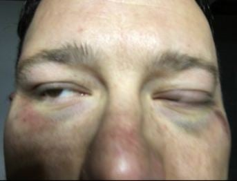 An Anderson County dad was brutally beaten outside his home Tuesday. No arrests have been made. (Courtesy: Mr. Carter)