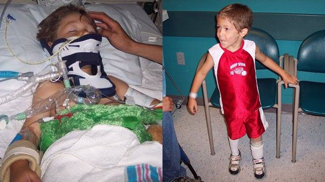 Dominic after accident (Source: Greenville Shriners Hospital)