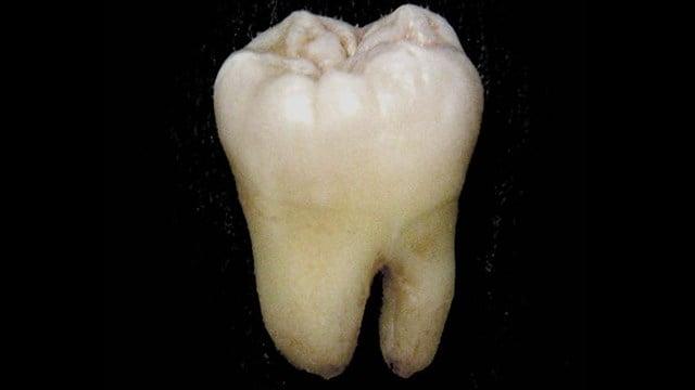 Human molar (Source: Wikimedia)