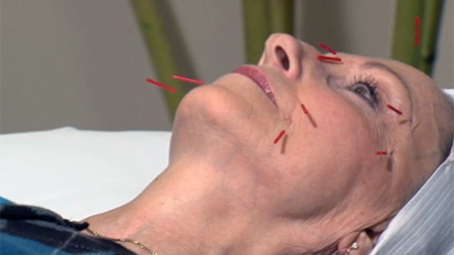 A patient gets an acupuncture facelift at the Greenville Natural Health Center. (File/FOX Carolina)