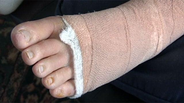 Flesh foot