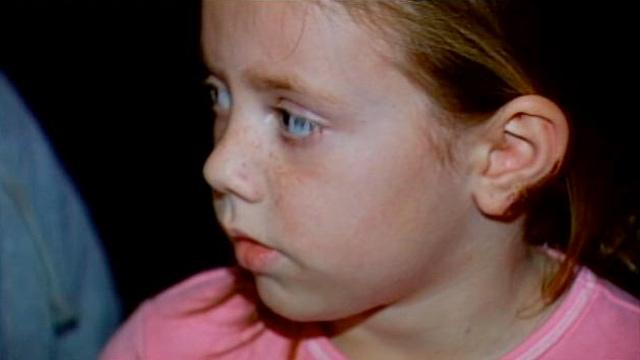 Kaylynne Byrd's injured ear. (Jan. 18, 2013/FOX Carolina)