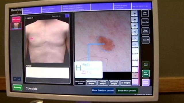 A skin scan is analyzed with Melafind. (File/FOX Carolina)