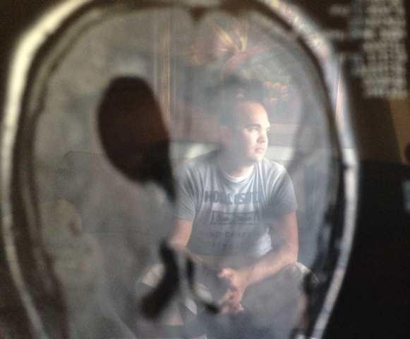 Brian Anderson says an MRI found a softball-sized tumor on his brain (May 1, 2014/FOX Carolina)